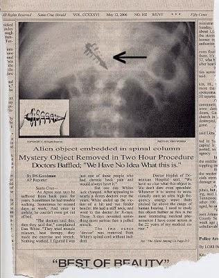Εξωγήινα Εμφυτεύματα σε Ανθρώπους, Τεκμηριωμένα Επιστημονικά