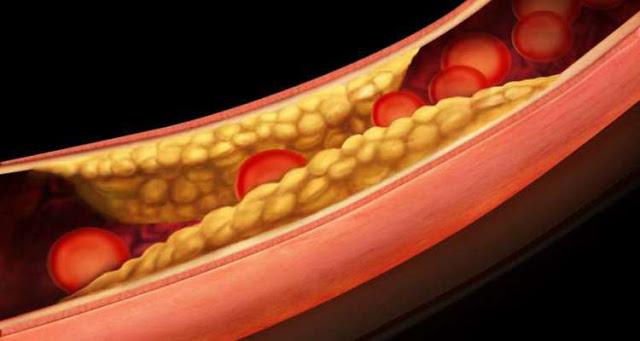 8 Μοναδικά Βότανα για Μείωση της Χοληστερίνης