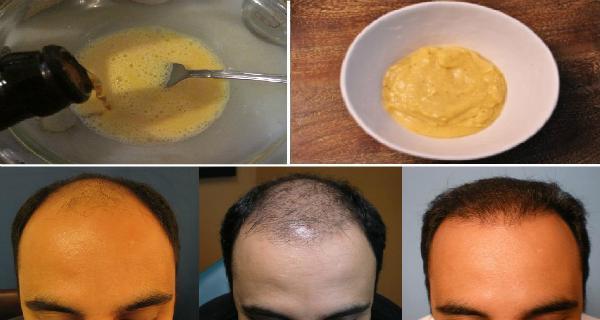 Εφάρμοσε μείγμα Μπανάνας και Μπύρας στα Μαλλιά του. Το αποτέλεσμα;