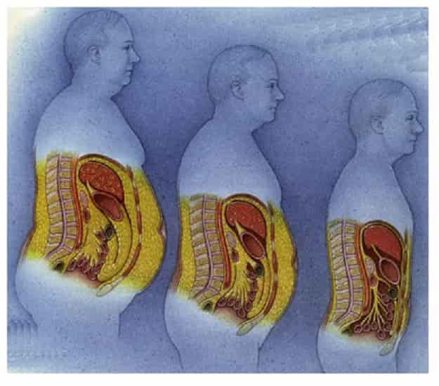Πώς να Διώξω την Κοιλιά και Ειδικότερα το Σπλαχνικό Λίπος!