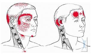 Πονοκέφαλος: Πού να κάνετε μασάζ για να περάσει πιο γρήγορα [σχεδιάγραμμα]