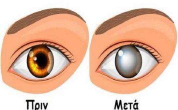 Προσοχή! Γιατροί συνδέουν την τύφλωση με αυτή τη συνήθεια που όλοι έχουμε και πρέπει να σταματήσουμε αμέσως