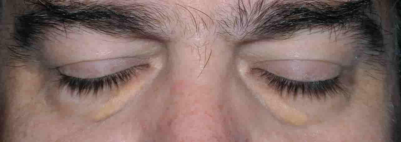Αν έχεις αυτό το σημάδι στο πρόσωπο, τότε έχεις υψηλή χοληστερίνη