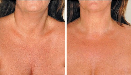 4 Θεραπείες για τη Μείωση των Ρυτίδων στο Λαιμό