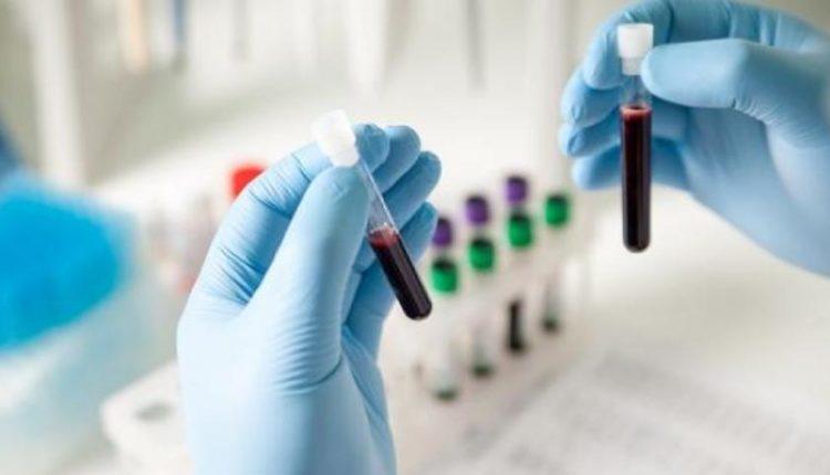 Ομάδες Αίματος: Ποιους Κινδύνους για την Υγεία Κρύβει η Κάθε Μία