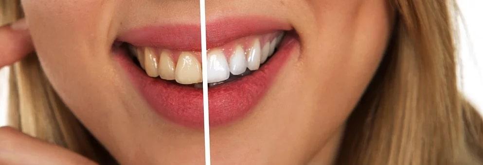 Φυσική λεύκανση δοντιών με με πάστα από δύο υλικά