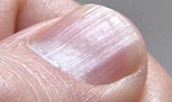 Τα σημάδια στα νύχια που δείχνουν πρόβλημα σε καρδιά, νεφρά και συκώτι